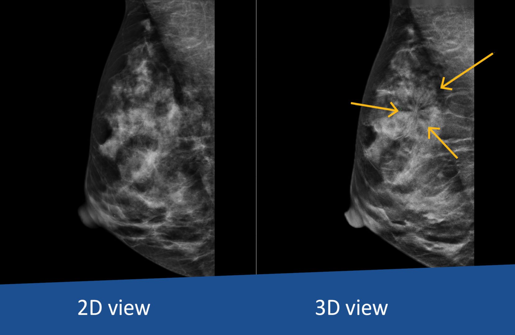 Comparison of 2D against 3D mammography of breast at Dr Jones & Partners Medical Imaging